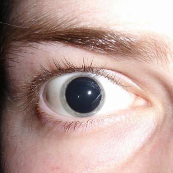 belladonna eye